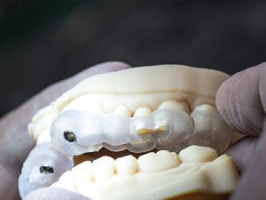 3d printing applications in dental processing