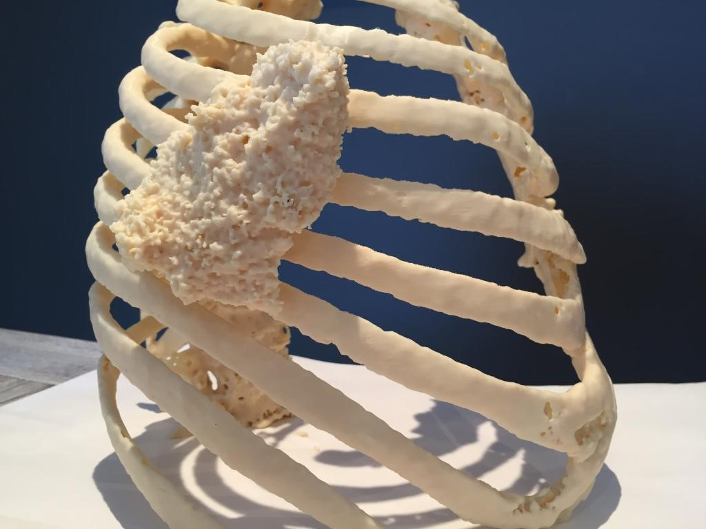 Patient-specific model of a tumor on the thoracic wall, 3D printed using the Stratasys Fortus 450mc (part 1).