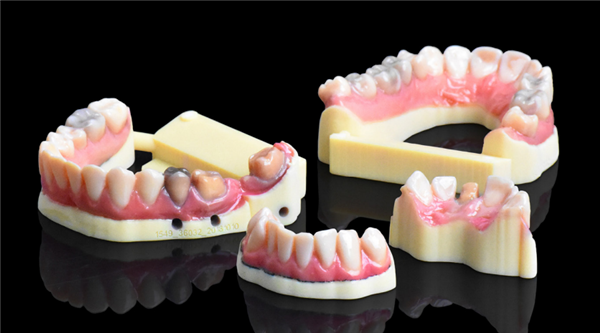 Realistic treatment models produced with the Stratasys J720 Dental 3D Printer.